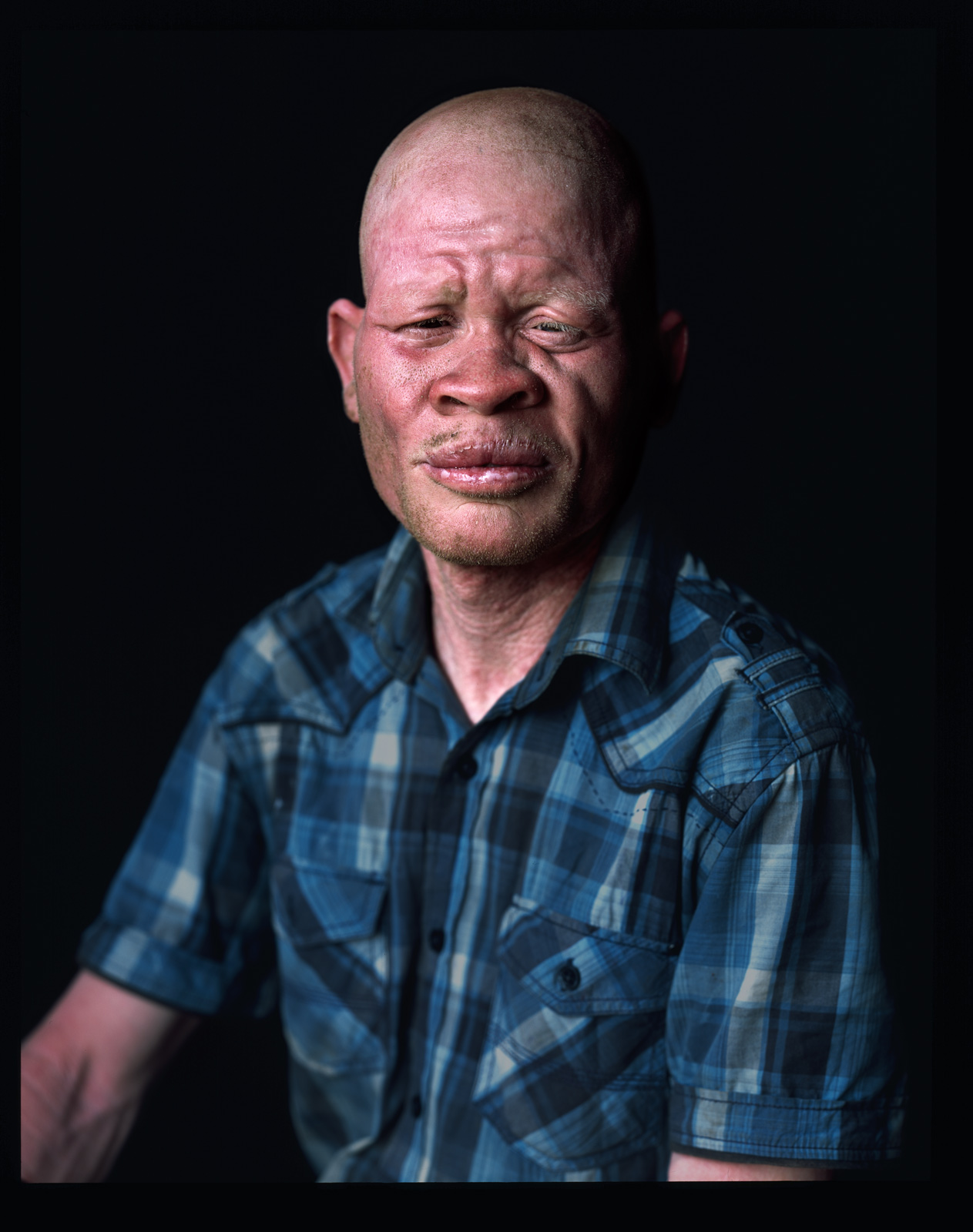 People with Albinism, Malawi